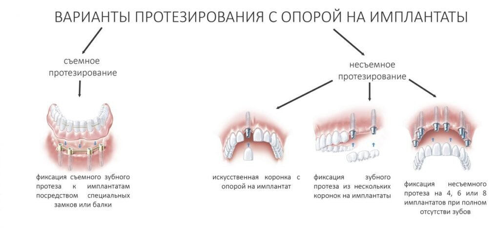 Protezirovanie na osnove implantatov