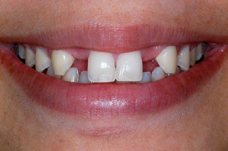 Protezirovanie_zubov_na_implantakh_rabota_1do