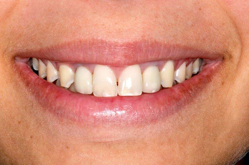 Protezirovanie_zubov_na_implantakh_rabota_1pos