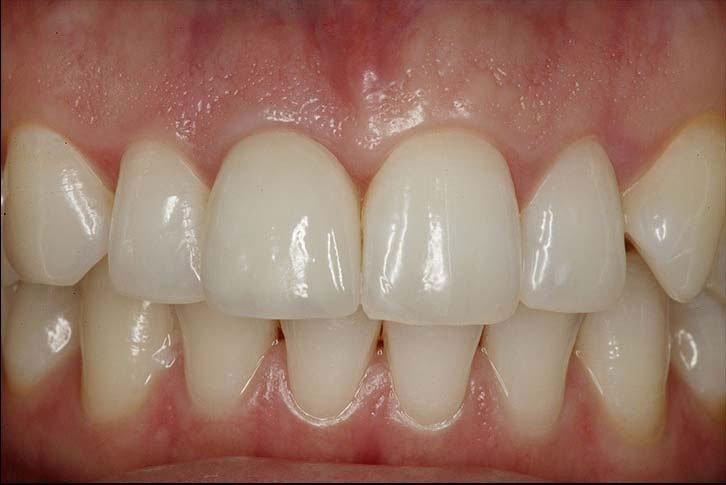 Protezirovanie_zubov_na_implantakh_rabota_2do