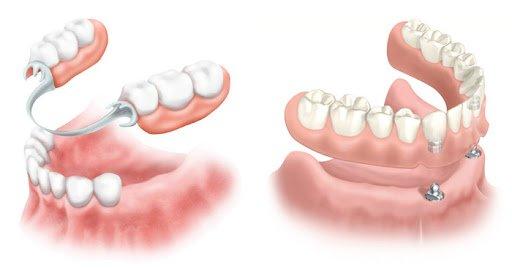 Tipy zubnyh protezov