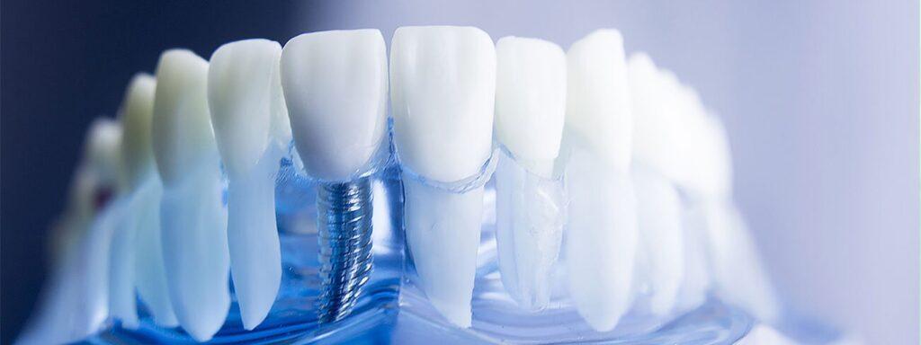 implantaciya zubov izrail