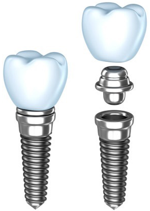 implantatform