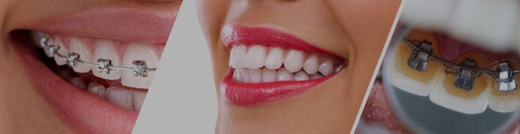 ortodontiya 1