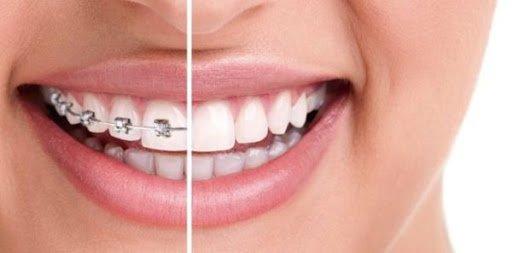 Современная ортодонтия