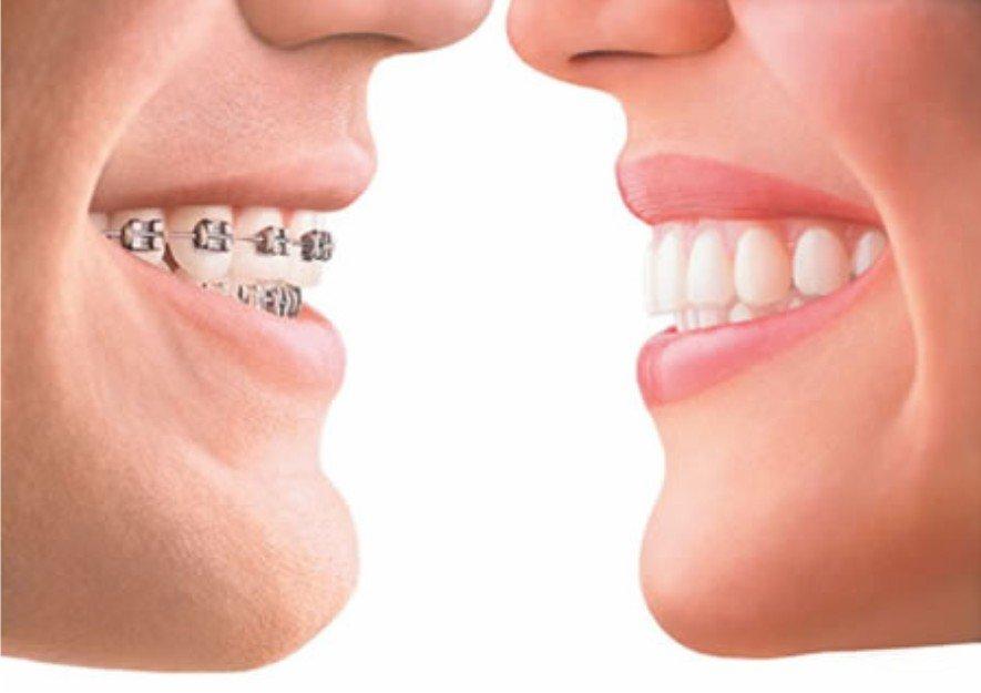 Часто задаваемые вопросы врачу ортодонту